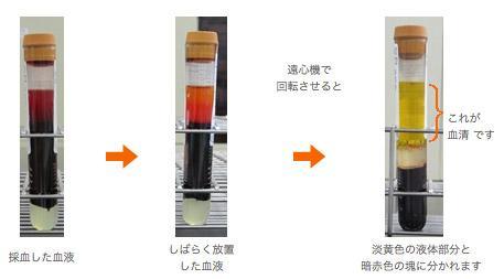 写真:採血から血清の生成までの過程